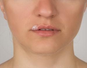 лечебная мазь на губе у женщины