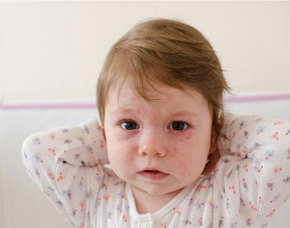 малыш с сыпью на лице