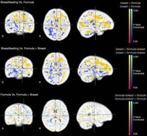 Структуры мозга у ребенка на ГВ, СВ и ИВ