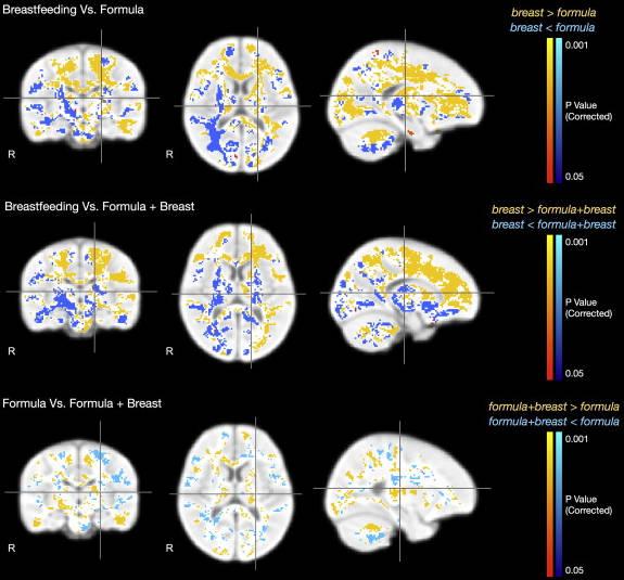 структуры мозга у ребенка на ГВ